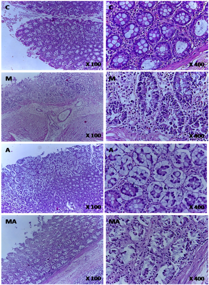 Hyperhomocysteinemia Lead To Transmural Inflammation Of Colon And Increase Severity Of Disease In Acetic Acid Induced Colitis In Rat