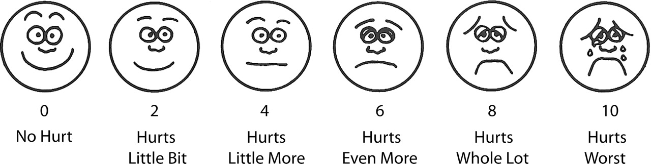 photo relating to Faces Pain Scale Printable known as Belief of Examination OF EFFICACY OF EPIDURAL BUTORPHANOL